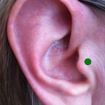Client's ear with Appetite Control Point